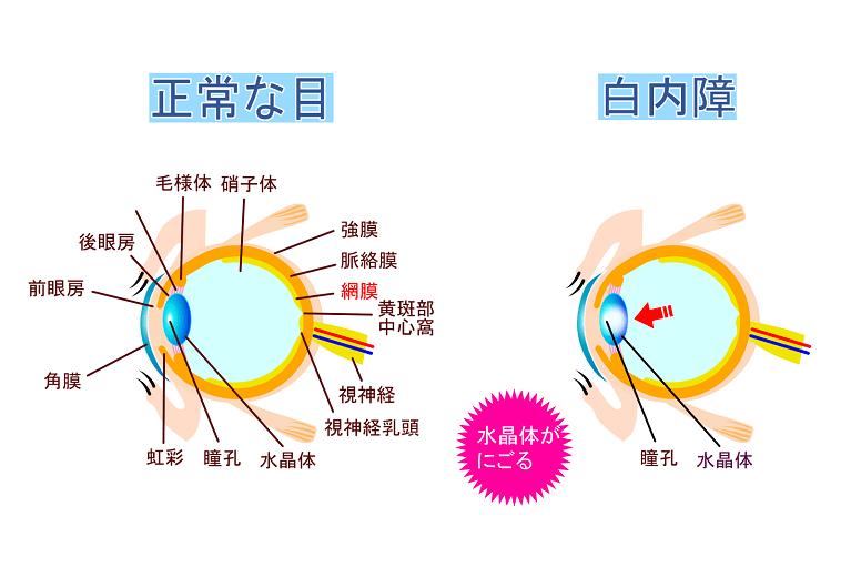 水晶体が白く濁り視力が低下する白内障