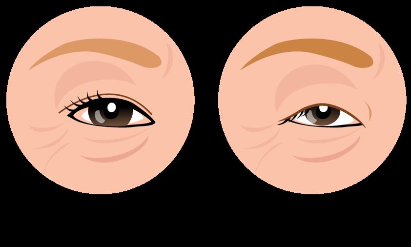 まぶたが重い眼瞼下垂