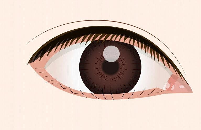 眼の痛み・違和感がある睫毛内反症(さかさまつげ)・眼瞼内反症