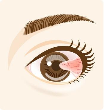 白目の結膜が黒目に伸びてくる翼状片