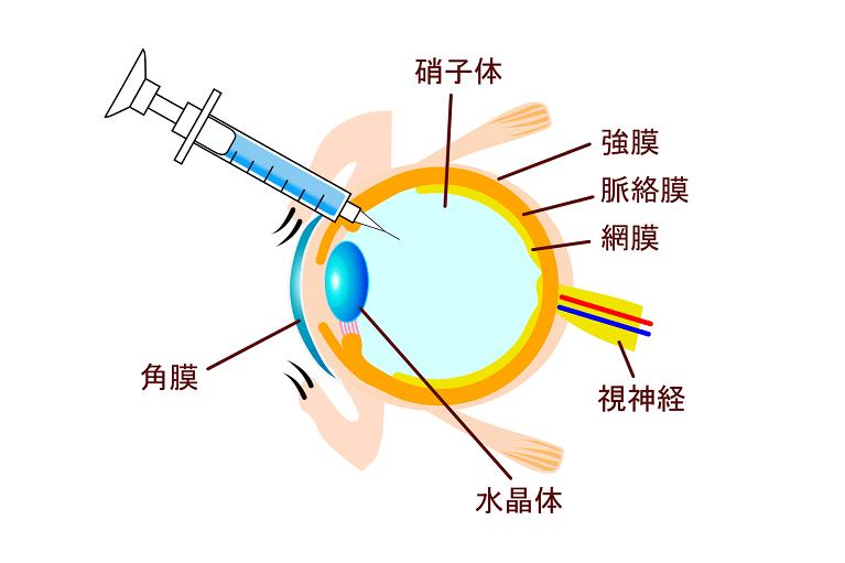 硝子体注射(抗VEGF療法)